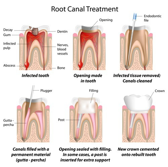 Root Canal Therap